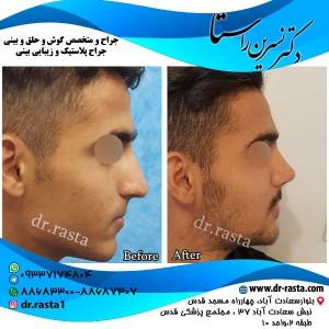 نتیجه جراحی بینی استخوانی آقا جوان از راست