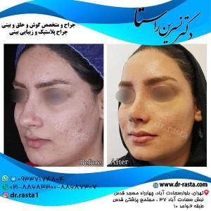 نتیجه جراحی بینی از چپ