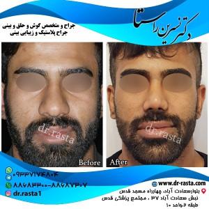 نمونه بینی گوشتی در مردان