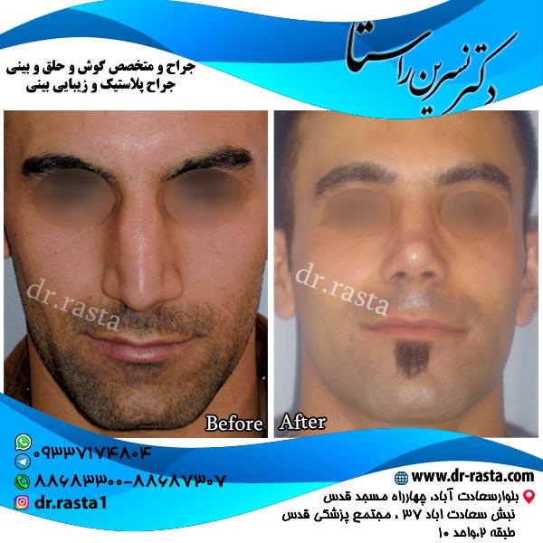 جراحی-بینی-9