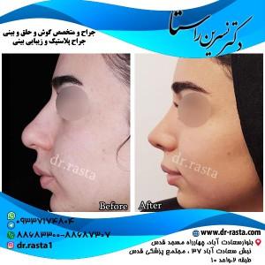 جراحی بینی زنان از نمای چپ