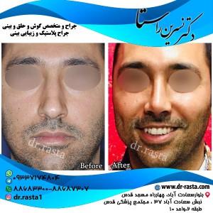 قبل و بعد از عمل بینی استخوانی آقای جوان از جلو