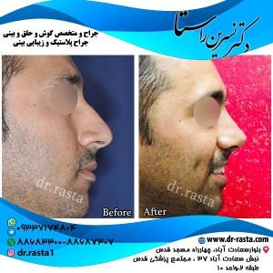 قبل و بعد از عمل بینی استخوانی آقای جوان از بغل