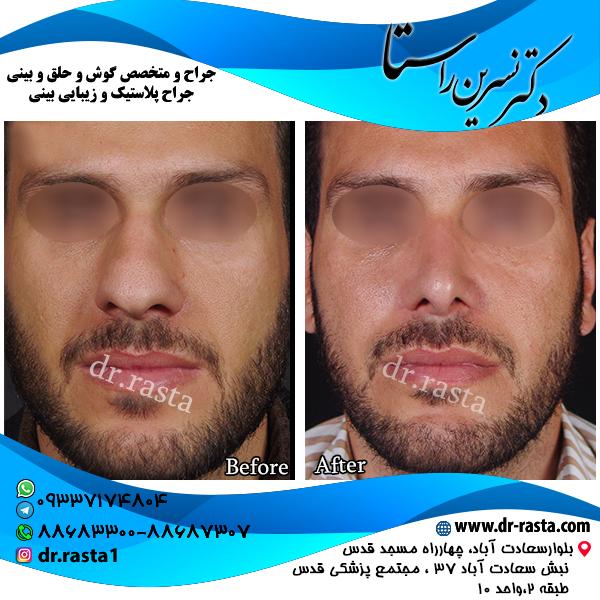 جراحی بینی 28