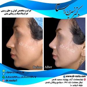 جراحی-بینی-10-نمای-4