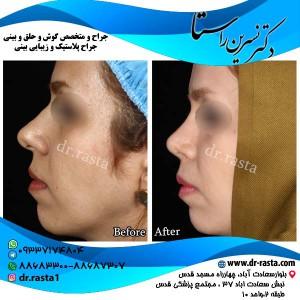 جراحی-بینی-11-نمای-4