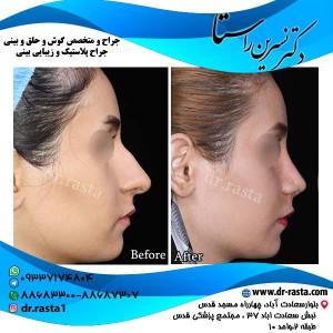 جراحی-بینی-2-نمای-2