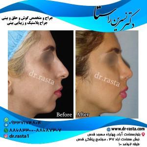 جراحی-بینی-3-نمای-2