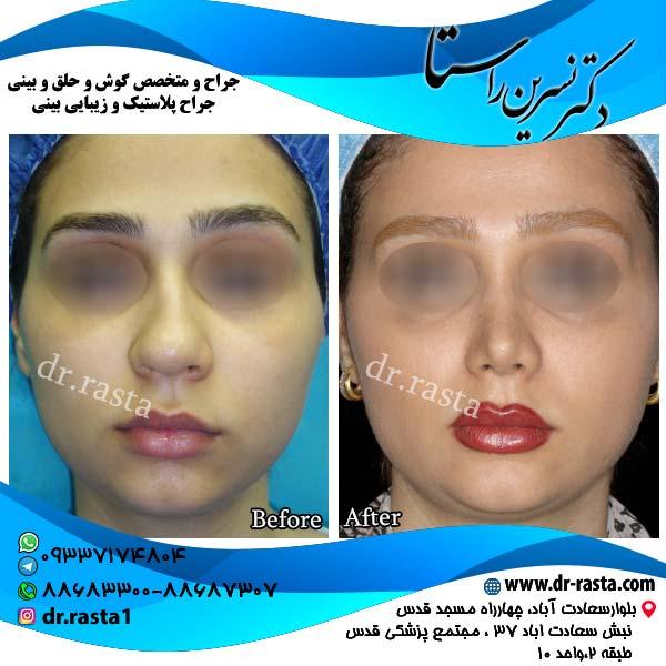 جراحی-بینی-4-نمای-1
