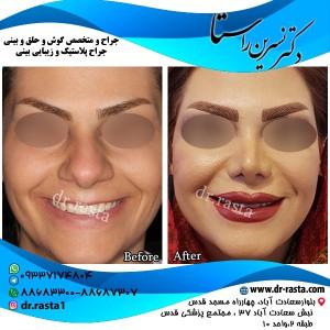 جراحی بینی گوشتی در زنان