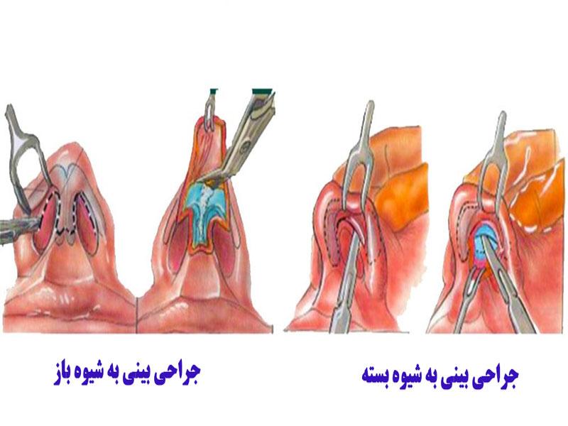 انواع تکنیک های جراحی بینی