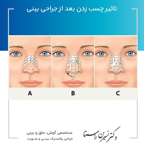 تاثیر-چسب-زدن-بعد-از-جراحی-بینی