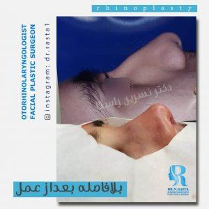 حین عمل بینی