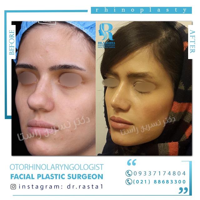 نمونه عمل بینی گوشتی زنان توسط دکتر نسرین راستا