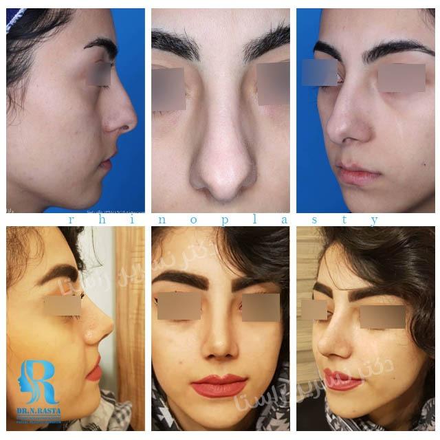 جراحی بینی دخترانه