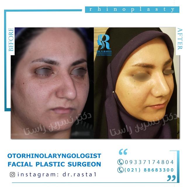نمای چپ بعد از جراحی بینی گوشتی