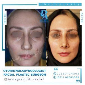نمای تمام رخ جراحی بینی