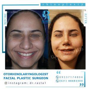 نتیجه جراحی بینی گوشتی دکتر راستا