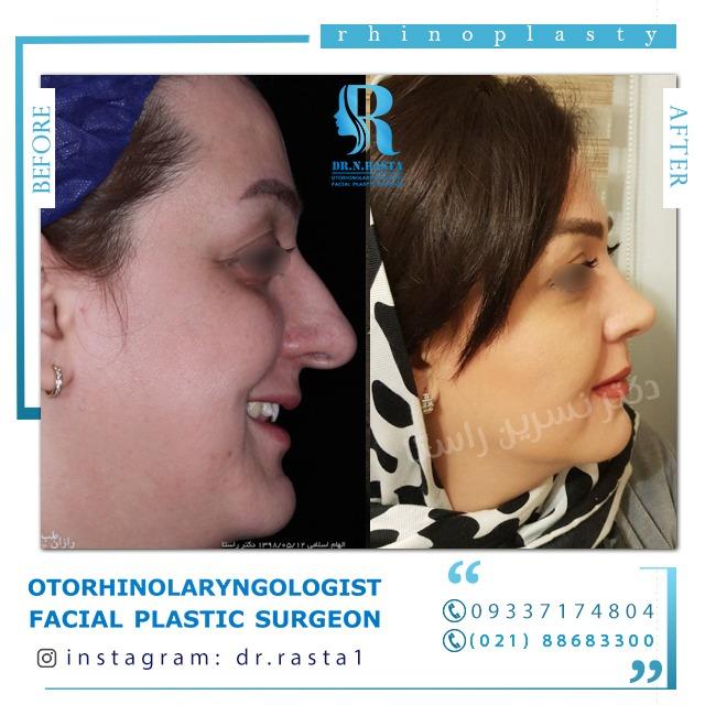 نمای راست بعد از جراحی بینی