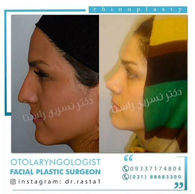 بلافاصله بعد از جراحی بینی دکتر نسرین راستا