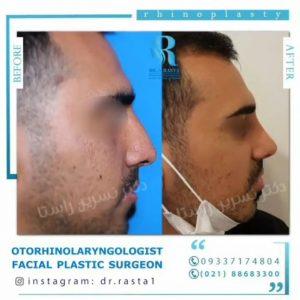 تغییرات قبل و بعد از عمل بینی