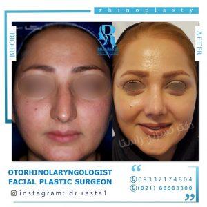 جراحی بینی بعد از دو ماه