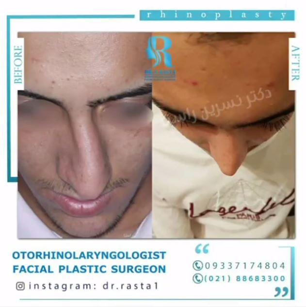 جراحی زیبایی بینی با انحراف بسیار شدید