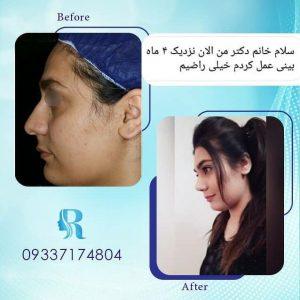 جراحی زیبایی بینی خانم جوان توسط دکتر راستا
