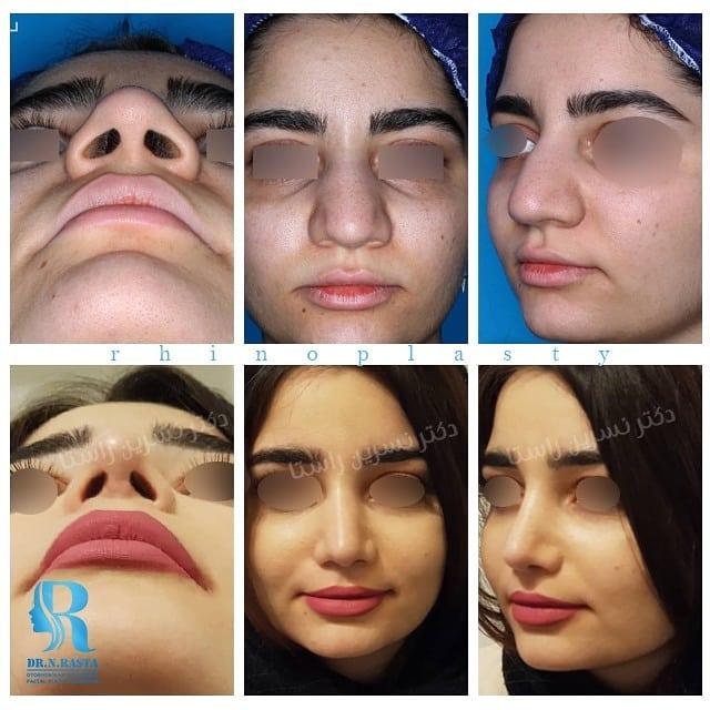جراحی زیبایی بینی مراجعه کننده محترم مطب دکتر راستا