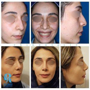جراحی زیبایی بینی مراجعه کننده محترم مطب