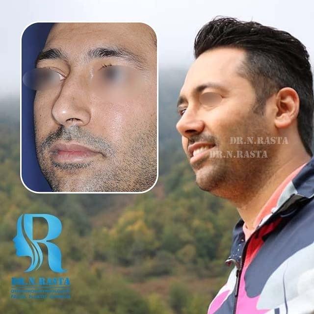 جراحی زیبایی بینی مردانه دکتر راستا
