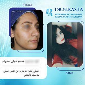 رضایت بعد از عمل بینی- دکتر نسرین راستا