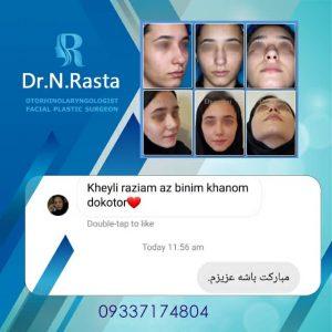 رضایت بیمار دکتر راستا بعد از عمل