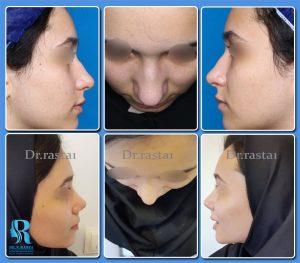 عکس های قبل و بعد از عمل بینی از تمام جهات