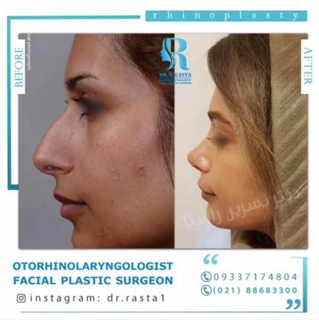 قبل و بعد عمل بینی خانم جوان توسط دکتر راستا