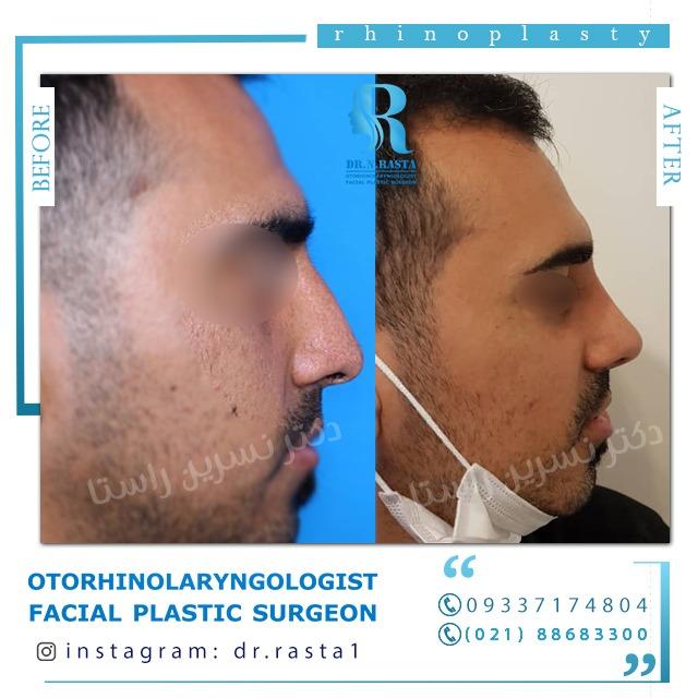 نمونه کار عمل بینی مردانه دکتر راستا