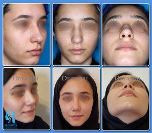 نمونه کار قبل و بعد از عمل بینی توسط دکتر راستا